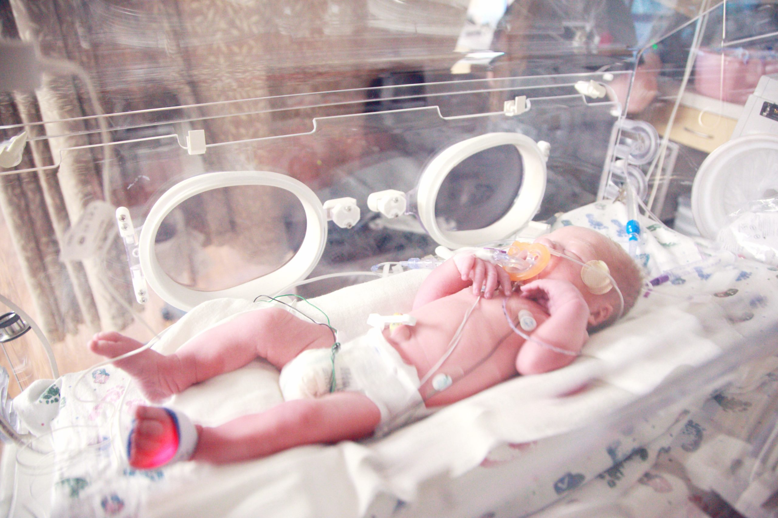 Neonatal Intensive Care Facilities: What You Need To Know